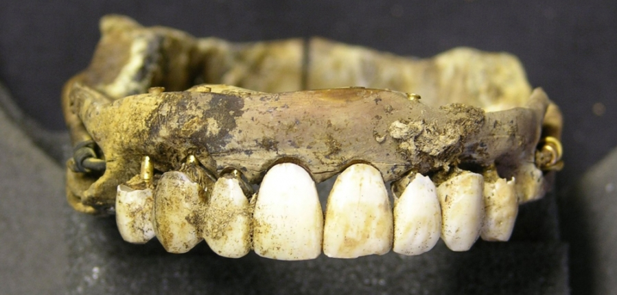 Waterloo teeth MOLA