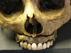 Detail of Waterloo Teeth fixed into upper half of dental prosthesis with metal pins. The build-up of dental calculus (mineralised plaque) on the ivory base (on right of image) shows that the prosthesis had been well used