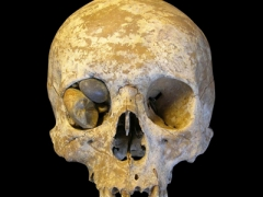 pockmarked Roman skull caused by the impact of Walbrook River gravels © MOLA