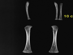 A section of a radiograph of an individual from St Mary and St Michael showing active rickets in the limb bones.