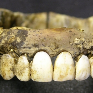 Waterloo teeth MOLA